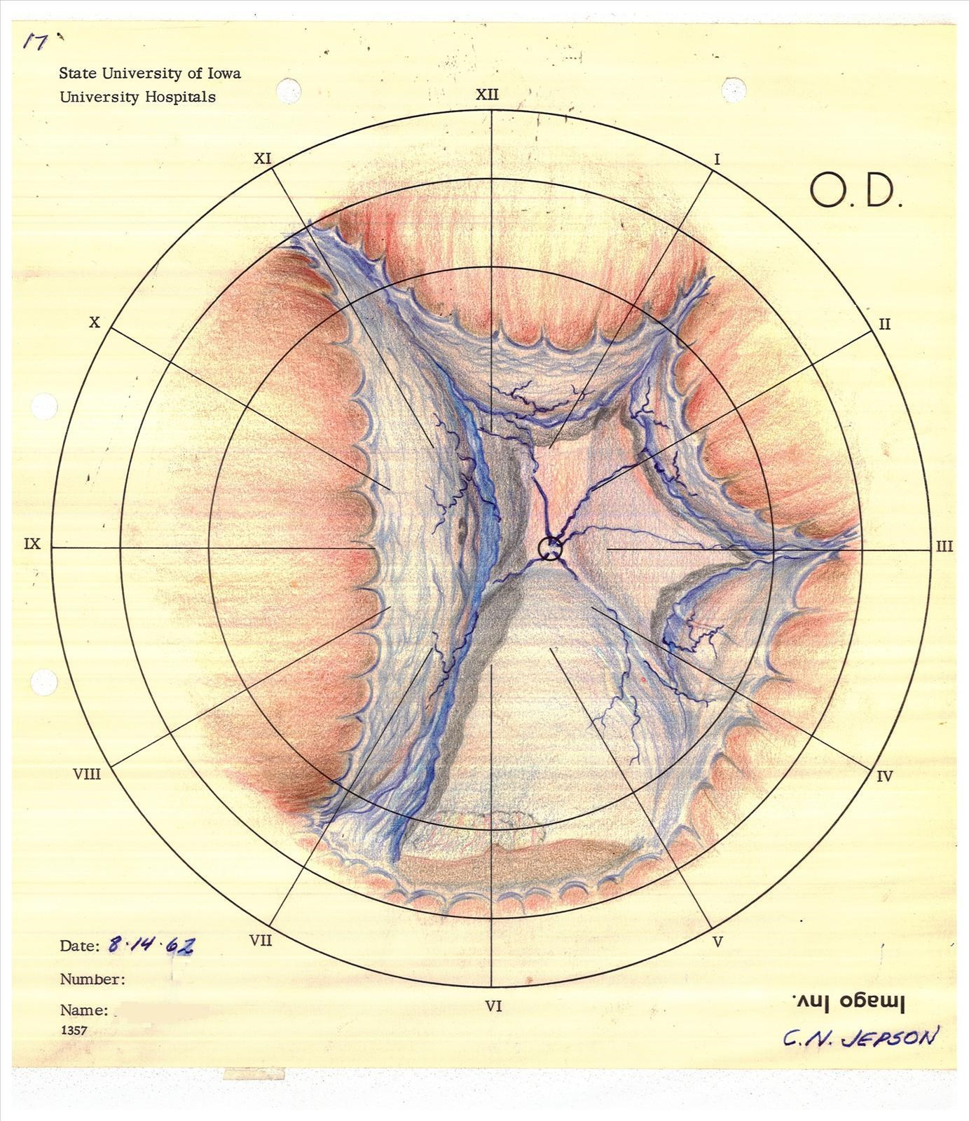 The Lost Art Of Retinal Drawing